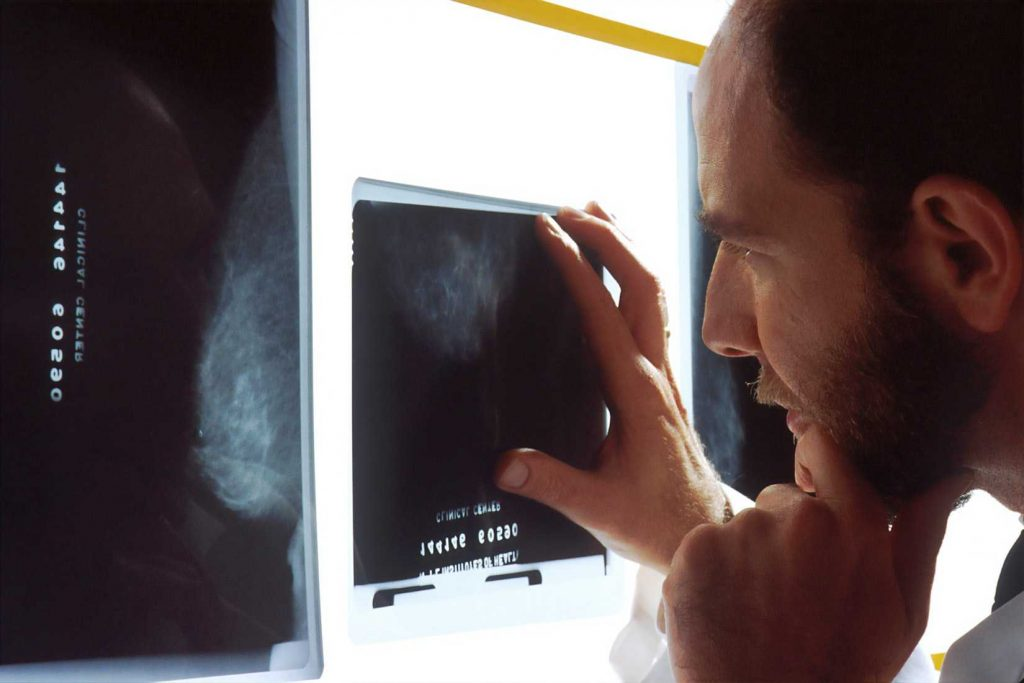 Doctor Taking a Look at X-Ray | Breast Cancer Car Donations